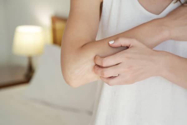 A woman itches her skin because of hard water effects